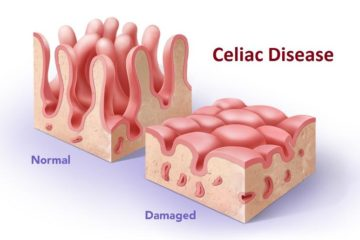 bệnh celiac