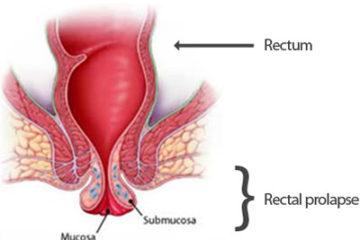 Nguyên nhân và triệu chứng bệnh sa trực tràng