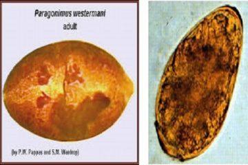 Bệnh truyền nhiễm sán lá phổi