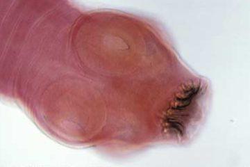 Tổng quan về bệnh ấu trùng sán lợn dưới da
