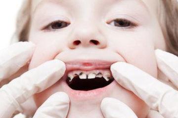 Bệnh sâu răng và những nguy cơ gặp phải khi mắc bệnh