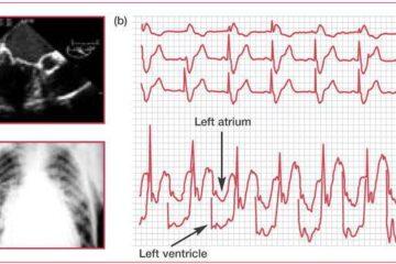 Xét nghiệm bệnh hẹp van hai lá: điện tâm đồ, siêu âm