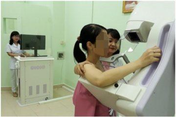 Sử dụng nhũ ảnh phát hiện ung thư vú và thấy được khối u trước 2 năm