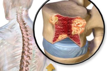 Bệnh huyết học suy tủy xương