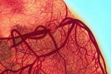 Tìm hiểu về tai biến sản khoa: Tắc mạch ối nguy hiểm, khó lường