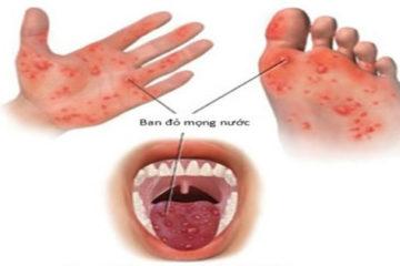 Bộ Y tế cảnh báo dịch tay chân miệng đang lây lan tại Khánh Hòa
