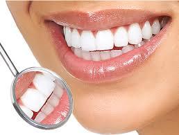 Kỹ thuật tẩy trắng răng