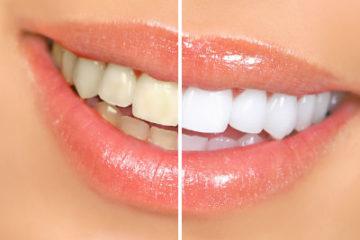 Thận trọng khi tẩy trắng răng