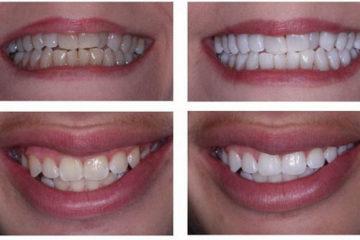 Quy trình tẩy trắng đối với răng xỉn do nhiễm thuốc kháng sinh, tetra, fluor