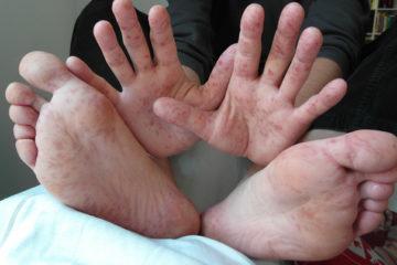 Nguyên tắc hữu hiệu để loại trừ bệnh tay chân miệng
