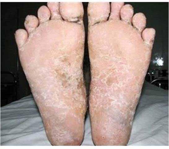 chân bệnh nhân ghẻ cóc