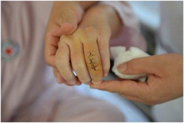 TPHCM thay khớp ngón tay cho bệnh nhân bằng silicone