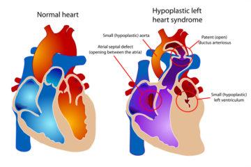 Đột phá mới trong điều trị thiểu sản tim trái – một dị tật bẩm sinh phức tạp