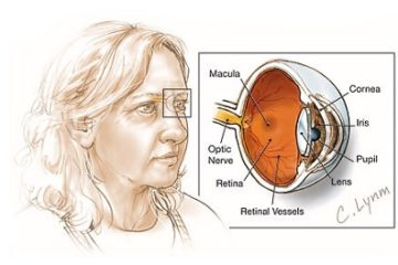 Người phụ nữ đầu tiên thoát mù nhờ điều trị bằng tế bào gốc