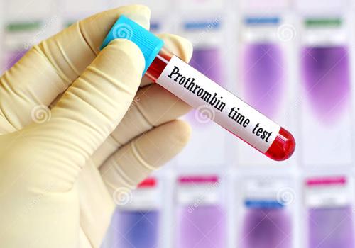 thời gian prothrombin