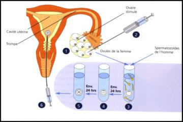 Khi nào cần thụ tinh nhân tạo và khi nào phải thụ tinh trong ống nghiệm?