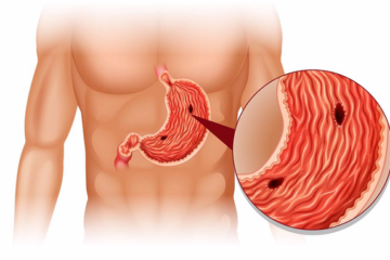 Thủng dạ dày tá tràng bệnh cấp cứu ngoại khoa