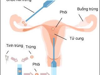 Phương pháp thụ tinh trong ống nghiệm tiến hành như thế nào?