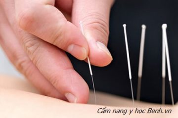 Thủy châm: Phương pháp châm cứu tiêm thuốc chữa bệnh hiệu quả