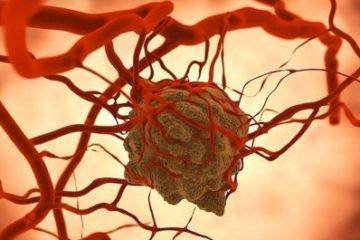 Thụy Sĩ  tạo ra vi rút giúp hệ miễn dịch tiêu diệt ung thư