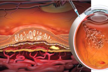 AVASTIN – loại thuốc ung thư trở thành cứu tinh của bệnh nhân mắt