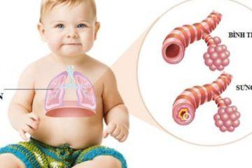 Viêm tiểu phế quản – Bệnh nguy hiểm cho bé