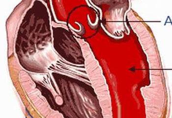 Huyết áp kẹt nguy hiểm thế nào?