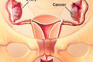phát hiện sớm ung thư buồng trứng