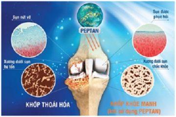 Tổn thương xương dưới sụn là biểu hiện mới của thoái hóa khớp