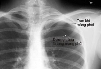 Hy hữu: Tràn khí màng phổi do la hét, quá khích
