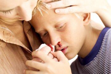trẻ bị chảy máu mũi