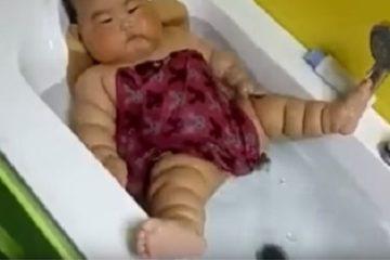 Trẻ bụ bẫm, nhiều ngấn coi chừng mắc bệnh Michelin
