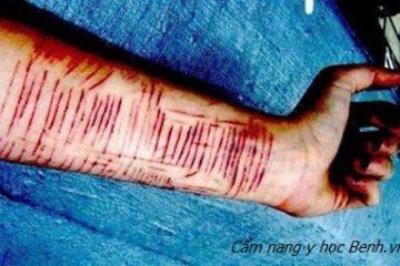 Tự rạch tay 16 nhát và hội chứng tự ngược đãi bản thân