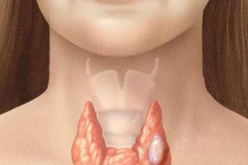 Bệnh viêm tuyến giáp thầm lặng