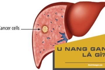 Hình ảnh tổn thương u nang gan trên siêu âm bụng