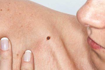 Ung thư da và những điều cần biết