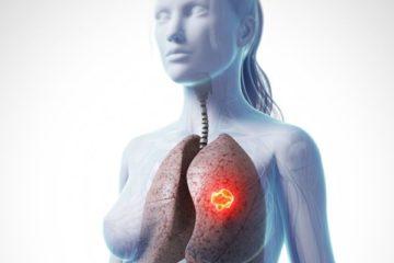 ung thư phổi ở phụ nữ