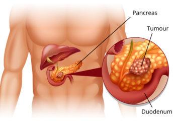 ung thư tụy