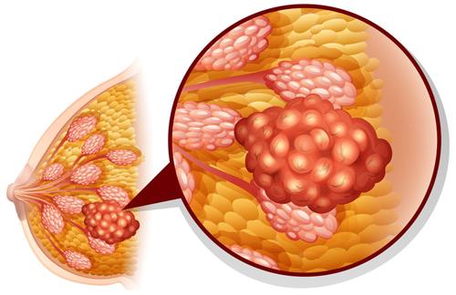 giảm nguy cơ ung thư vú