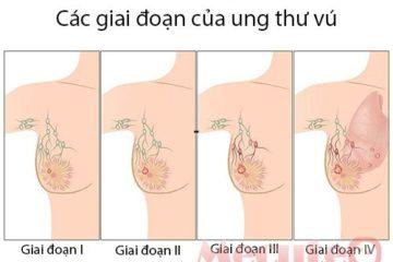 Các giai đoạn phát triển của bệnh ung thư vú