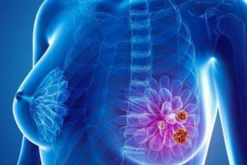 Ung thư vú có tỷ lệ di truyền như thế nào?