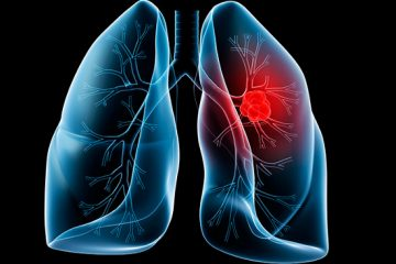 vắc xin phòng ung thư phổi