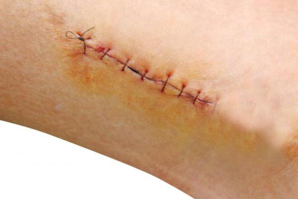 Vết thương liền như thế nào trong bệnh ngoại khoa - Benh.vn