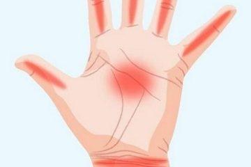 Nhận diện vị trí nhức trên ngón tay phỏng đoán bệnh bạn đang mắc