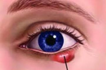 Nguyên nhân gây co giật mí mắt và cách bảo vệ mắt