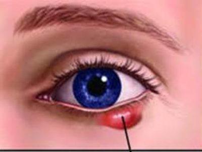 lẹo ở mắt gây giật mí mắt