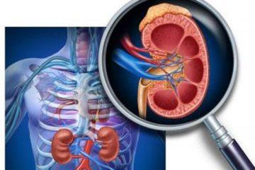 Triệu chứng lâm sàng và xét nghiệm bệnh viêm cầu thận cấp
