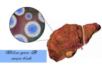 Bệnh viêm gan B mạn tính