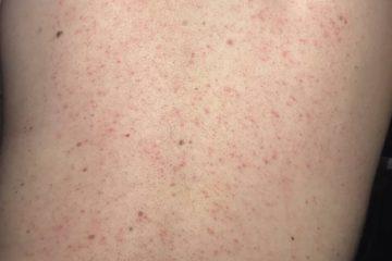 Hướng dẫn điều trị bệnh viêm nang lông Bộ Y tế ban hành