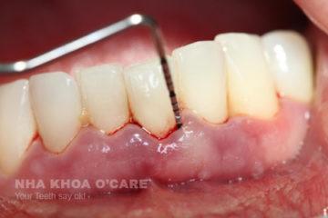 Chữa, dự phòng bệnh viêm quanh răng